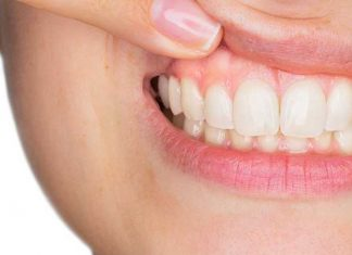 how to fix receeding gums