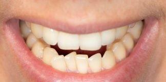 teeth shifting