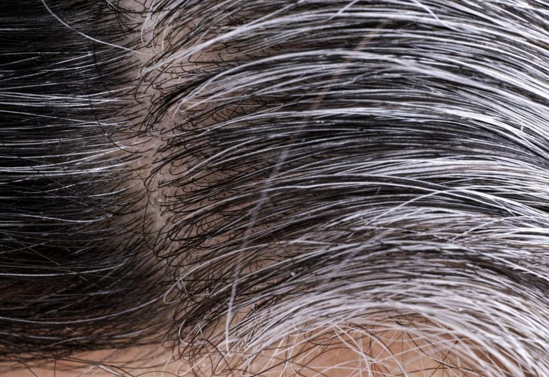 stop and reverse graying hair